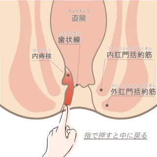 内痔核ステージⅢ