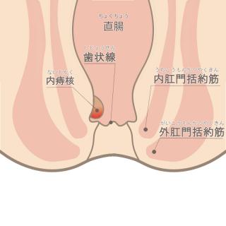 内痔核ステージⅠ
